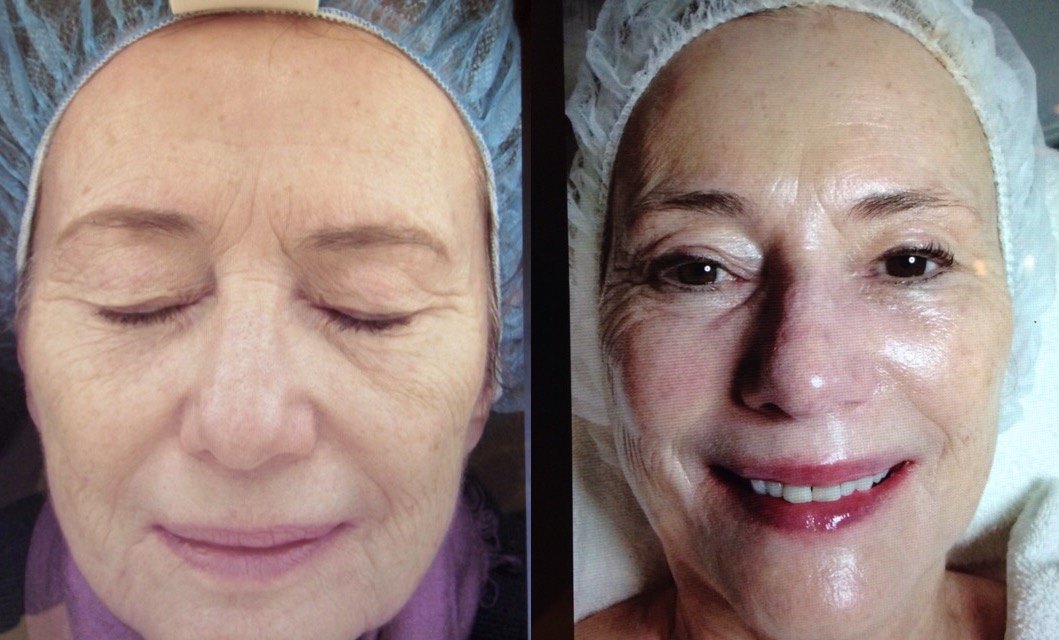Before and after the 3D (TM) Celebrity Facial at FACE Skincare. (Photo, courtesy FACE Skincare)